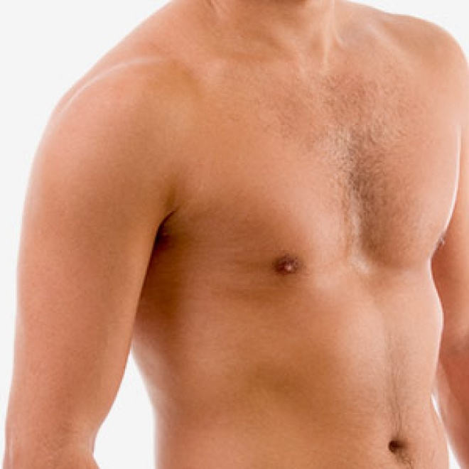 Breast Reduction for Men - Gynecomastia